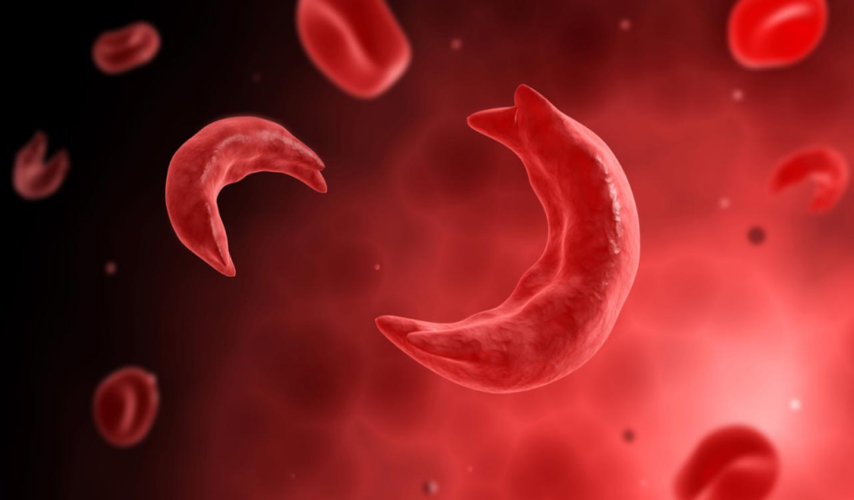 Nigeria has the highest rate of sickle cell disease in the world
